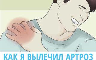 Как я вылечил артроз