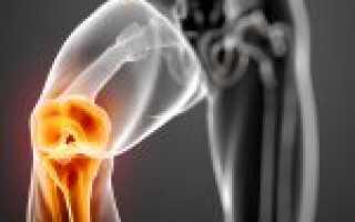 Артроз коленного сустава 1 степени что это такое как лечить