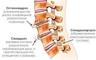 Спондилоартроз пояснично крестцового отдела позвоночника