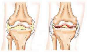 Код по мкб 10 деформирующий остеоартроз