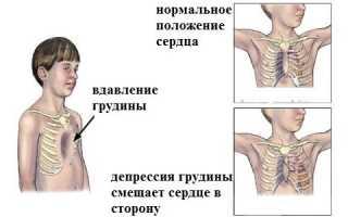 Сколиоз деформация грудной клетки у подростков причины: в домашних условиях, как выглядит, медикаменты, признаки