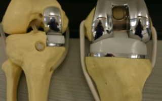 Массаж после замены коленного сустава